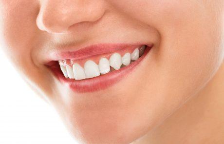 האם ציפוי חרסינה לשיניים זו בחירה טובה?