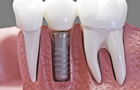 שתלים לשיניים לשיפור בריאות הפה